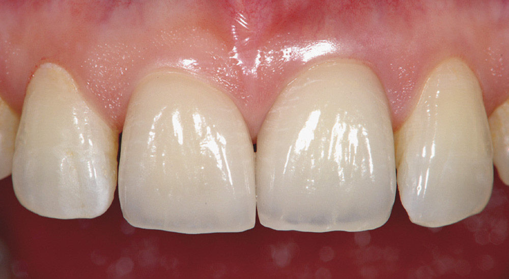 aesthetic dental prosthesis