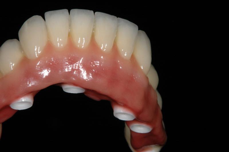 aesthetic dental prosthesis